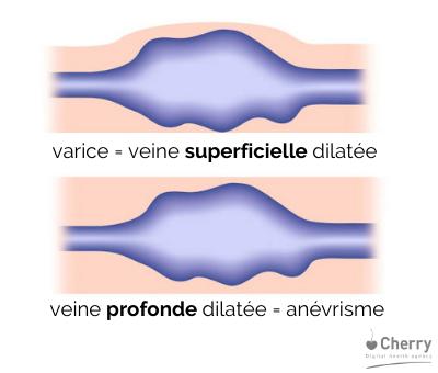 schéma sur les différents types de varices