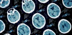 Covid-19 et cerveau : de potentielles lésions cérébrales