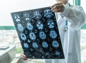 diagnostic de la Sclérose tubéreuse de Bourneville