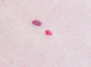 Symptômes de la Sclérose tubéreuse de Bourneville