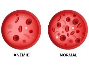 reconnaître une anémie
