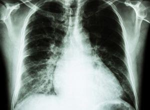 radiographie pour identifier une Cardiomégalie