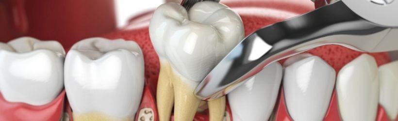 Alvéolite dentaire