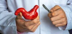 Bypass gastrique : une opération efficace pour les personnes obèses