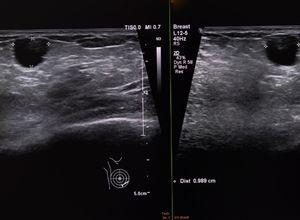 Radiographie d'un Kyste du sein