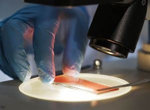 Analyses sanguines au microscope